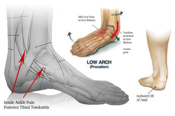 Foot Orthotics- The research
