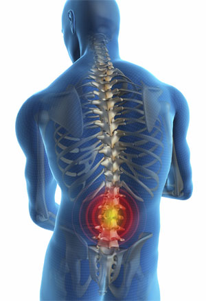 Physio equal to surgery for Back Pain