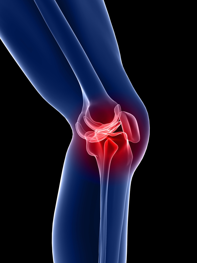 how to stop arthritis knee pain