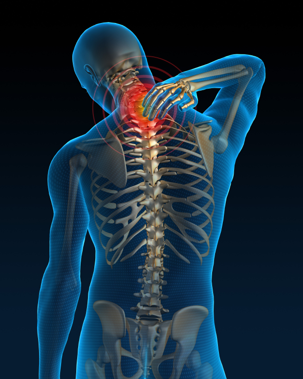 Neck Pain Causes And Solutions Saanich Physiotherapy Sports Medicine