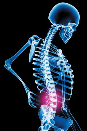 Back Pain and early Access to treatment- Original Research Article By Scott Simpson, Physiotherapist