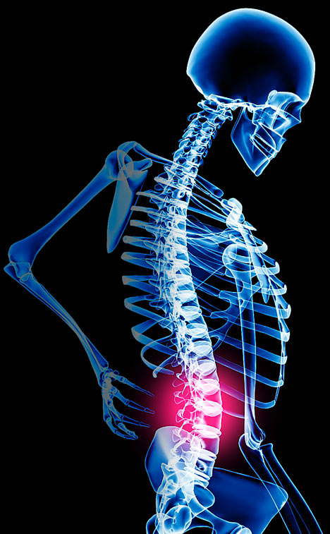 Back and Neck Pain : 19 percent have persistent pain