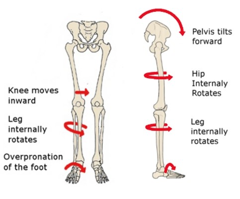 Knee pain? Research says strengthen the hips!