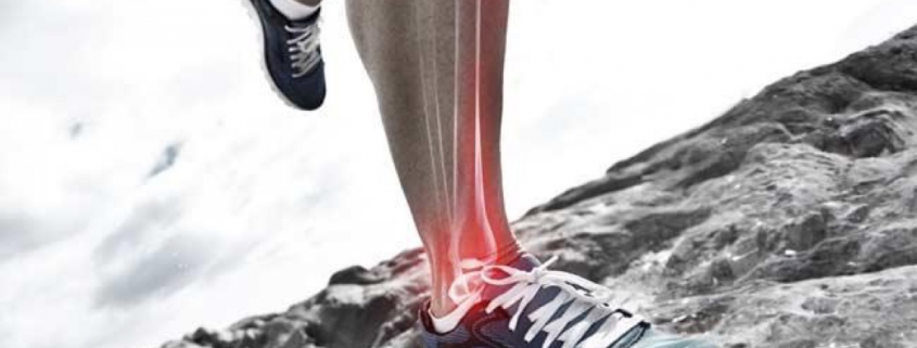 Calf Muscle Pain – Saanich Physiotherapy & Sports Medicine